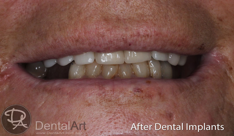 dental implants at dental art