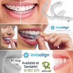 Teeth Straightening with Invisalign