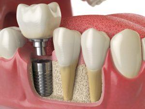 dental implants at dental art