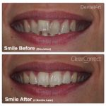 Teeth Straightening with Clearcorrect